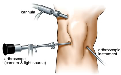 Knee Replacement Surgery & Arthroscopic Knee Surgery ...