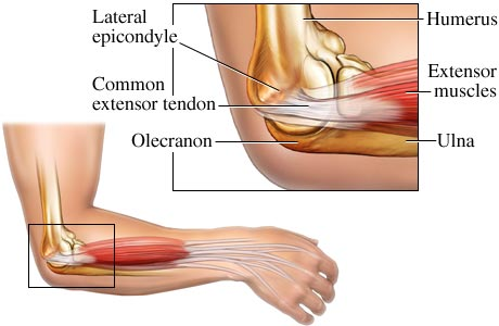 tennis elbow cure image search results
