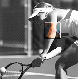 Elbow Surgery Due To Tennis